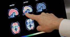 علماء من السويد وبريطانيا يطورون طريقة للكشف عن مرض الزهايمر قبل ظهور أعراضه image